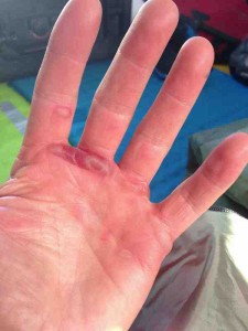 Hand blister small